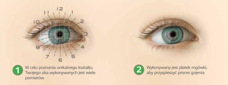 laserowa korekcja wad wzroku mapa oka